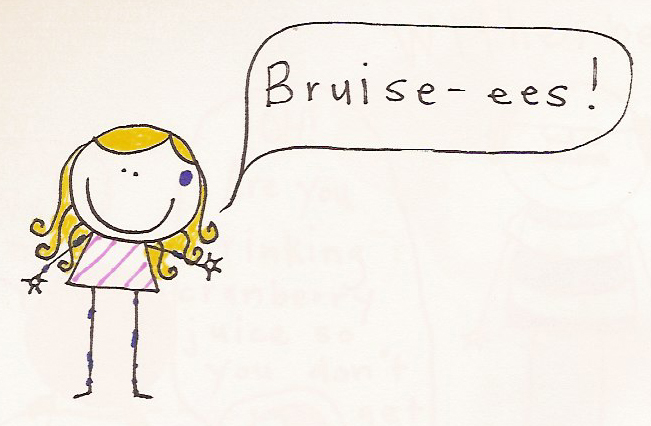if you drink a lot, you're more susceptible to bruies-ees!